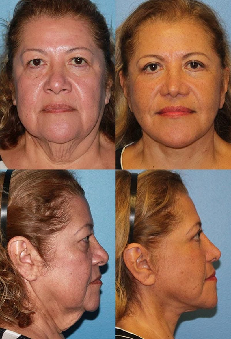 Face Lift Gallery - Patient 2158291 - Image 1