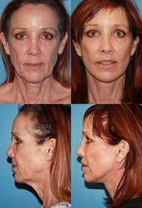Face Lift Gallery - Patient 2158292 - Image 1