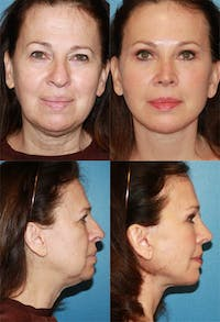 Face Lift Gallery - Patient 2158294 - Image 1