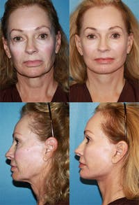 Face Lift Gallery - Patient 2158295 - Image 1