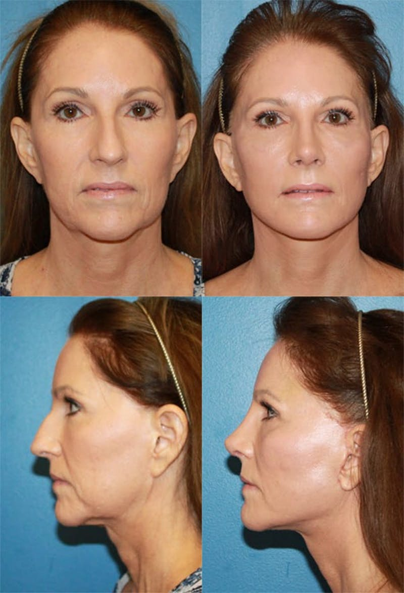 Face Lift Gallery - Patient 2158296 - Image 1
