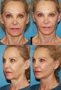 Face Lift Gallery - Patient 2158297 - Image 1