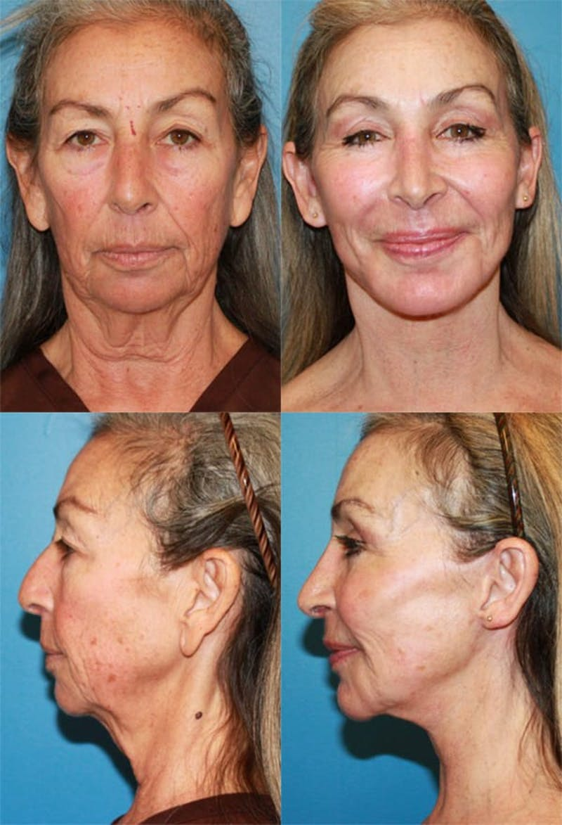 Face Lift Gallery - Patient 2158298 - Image 1