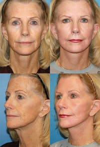 Face Lift Gallery - Patient 2158299 - Image 1