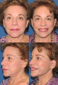 Face Lift Gallery - Patient 2158300 - Image 1