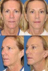 Face Lift Gallery - Patient 2158301 - Image 1