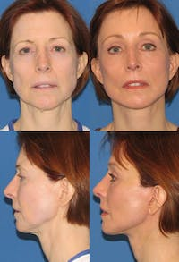 Face Lift Gallery - Patient 2158303 - Image 1
