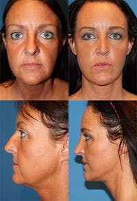 Face Lift Gallery - Patient 2158304 - Image 1