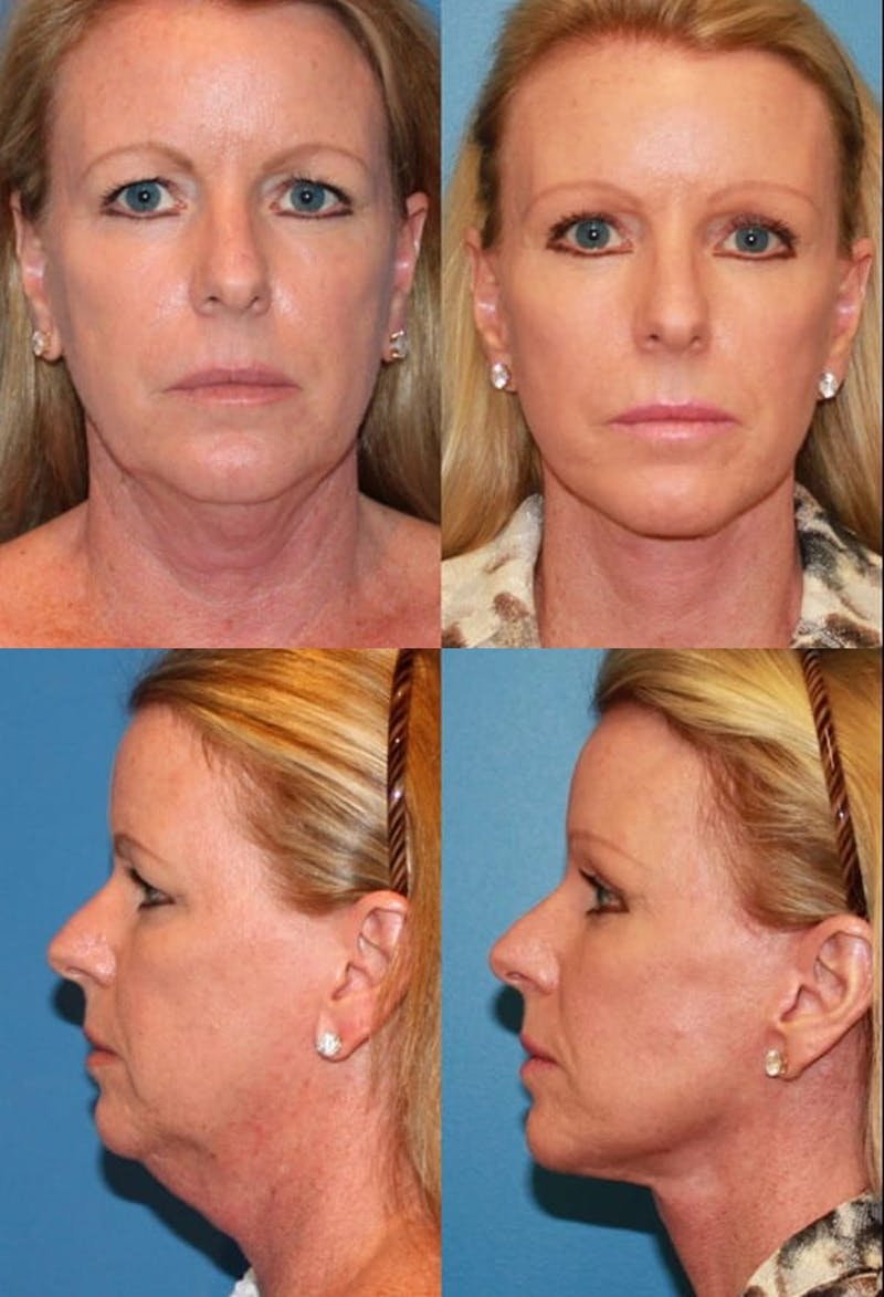 Face Lift Gallery - Patient 2158305 - Image 1