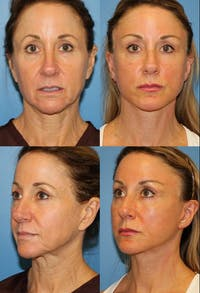 Face Lift Gallery - Patient 2158306 - Image 1