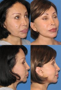 Face Lift Gallery - Patient 2158307 - Image 1