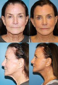 Face Lift Gallery - Patient 2158308 - Image 1
