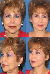 Face Lift Gallery - Patient 2158311 - Image 1