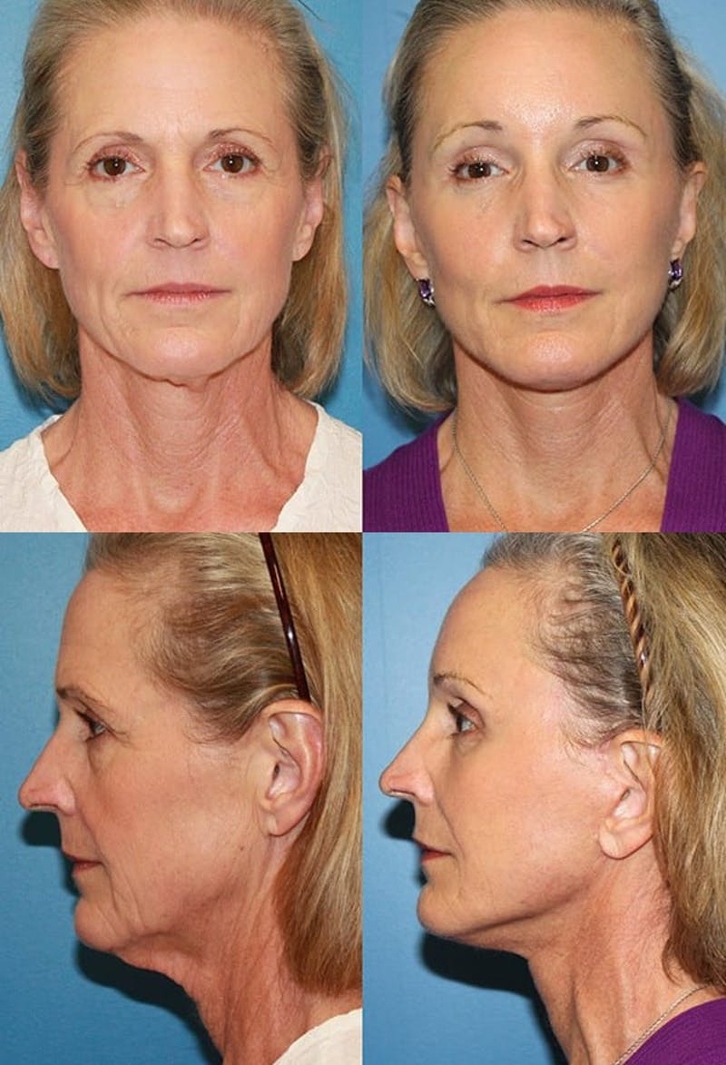 Face Lift Gallery - Patient 2158315 - Image 1