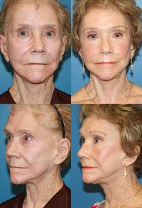 Face Lift Gallery - Patient 2158316 - Image 1