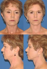 Face Lift Gallery - Patient 2158317 - Image 1