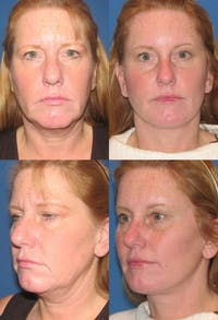 Face Lift Gallery - Patient 2158318 - Image 1
