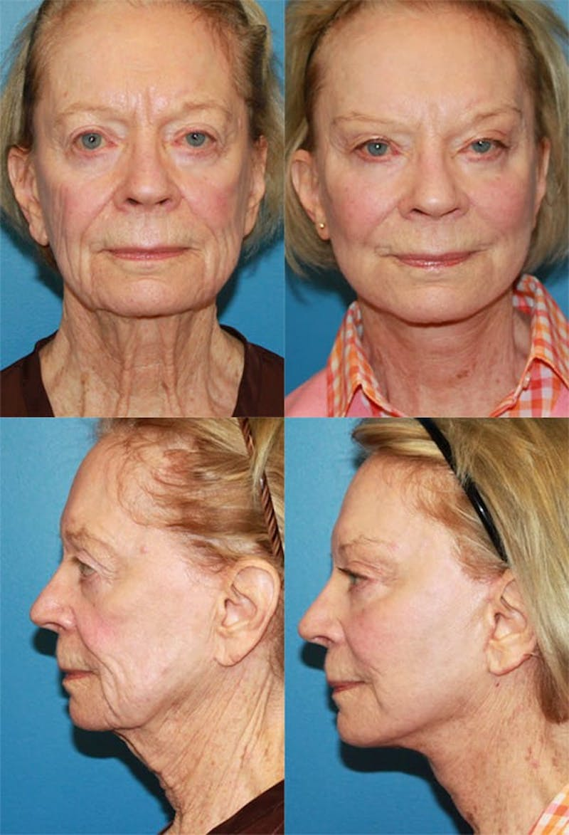 Face Lift Gallery - Patient 2158320 - Image 1