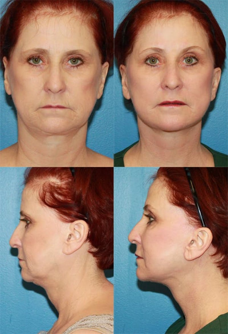 Face Lift Gallery - Patient 2158322 - Image 1