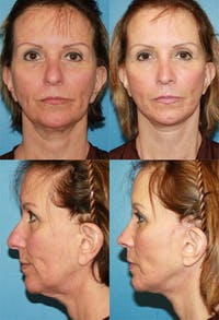 Face Lift Gallery - Patient 2158323 - Image 1