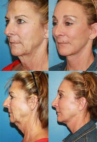 Face Lift Gallery - Patient 2158324 - Image 1