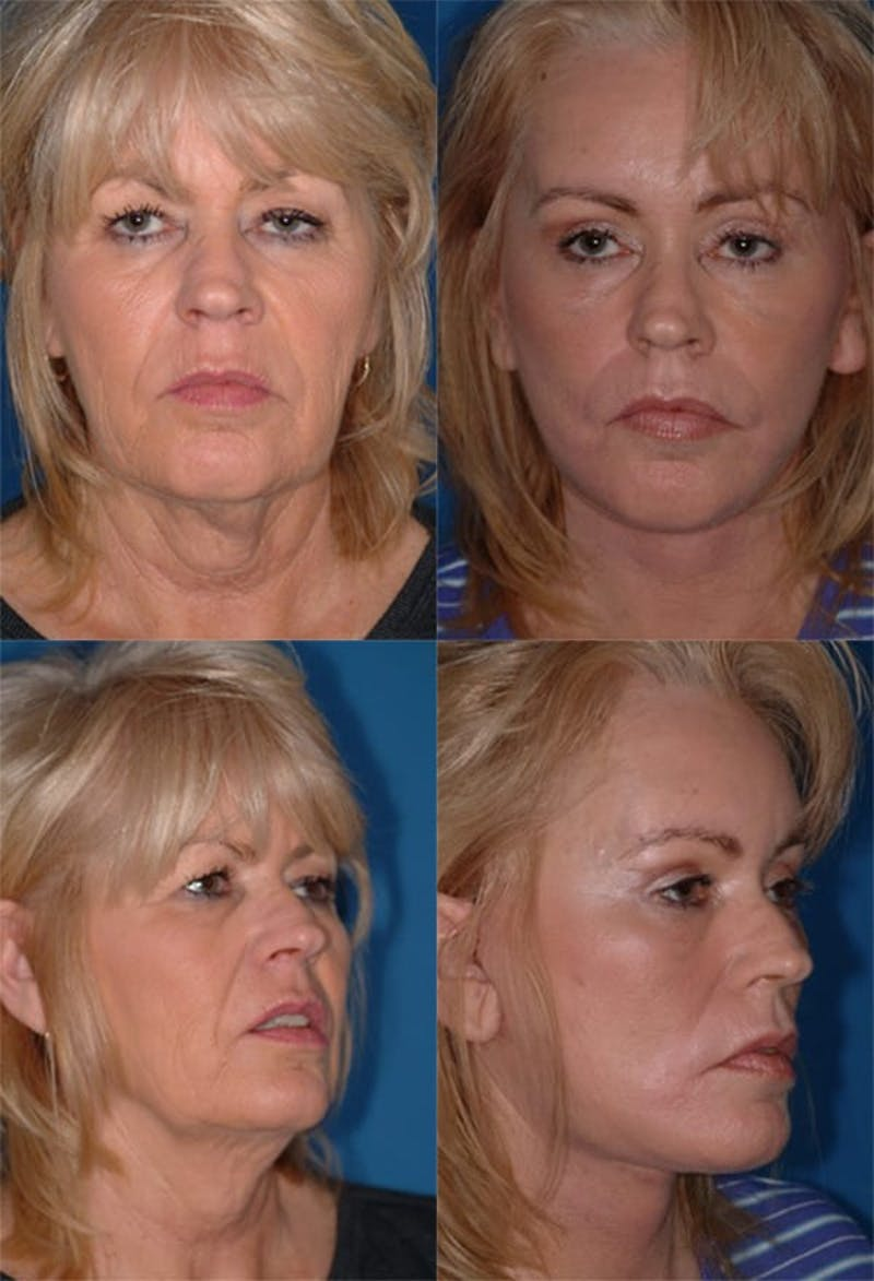 Face Lift Gallery - Patient 2158325 - Image 1