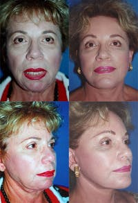 Face Lift Gallery - Patient 2158327 - Image 1