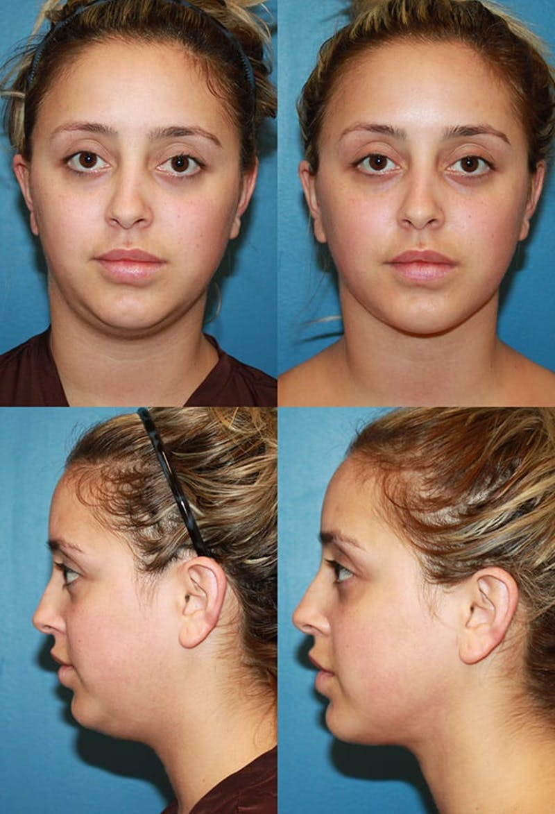 Neck Liposuction Gallery - Patient 2158375 - Image 1