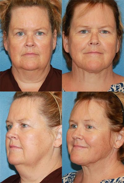 Neck Liposuction Gallery - Patient 2158376 - Image 1