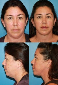 Neck Liposuction Gallery - Patient 2158377 - Image 1