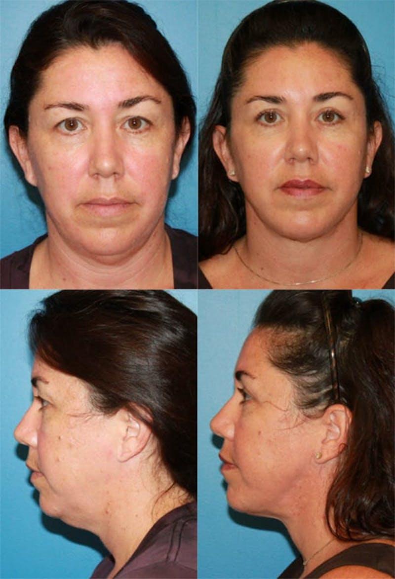 Neck Liposuction Gallery - Patient 2158377 - Image 1