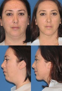 Neck Liposuction Gallery - Patient 2158378 - Image 1