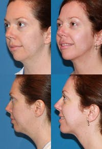 Neck Liposuction Gallery - Patient 2158380 - Image 1