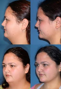 Neck Liposuction Gallery - Patient 2158381 - Image 1