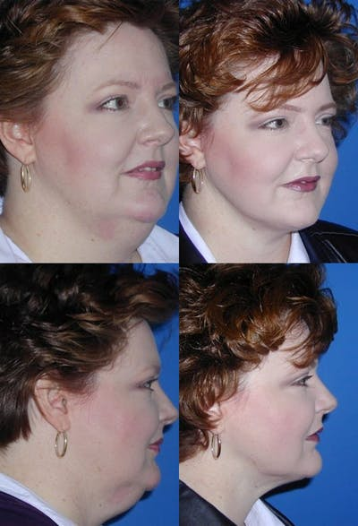 Neck Liposuction Gallery - Patient 2158382 - Image 1