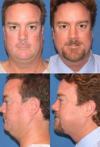 Neck Liposuction Gallery - Patient 2158383 - Image 1