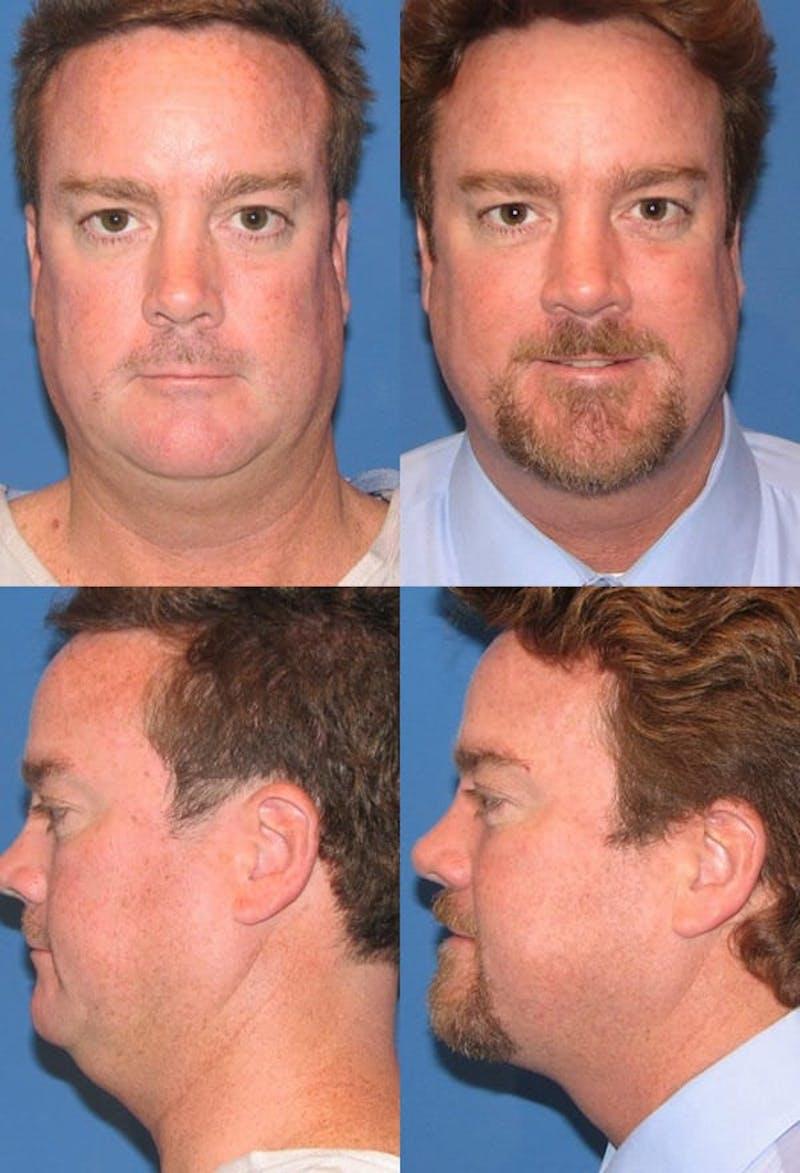Neck Liposuction Gallery - Patient 2158383 - Image 1