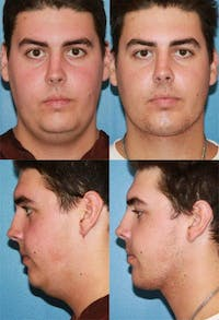 Neck Liposuction Gallery - Patient 2158384 - Image 1
