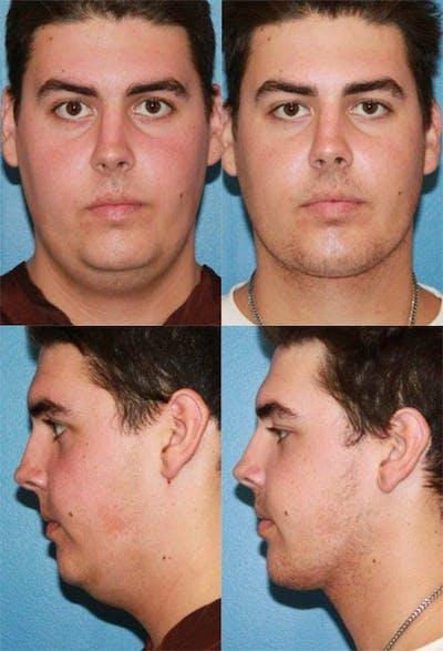 Neck Liposuction Gallery - Patient 2158384 - Image 1