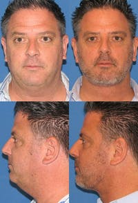 Neck Liposuction Gallery - Patient 2158385 - Image 1