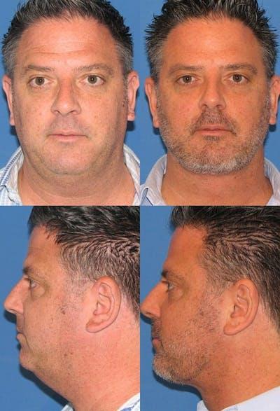 Neck Liposuction Gallery - Patient 2158385 - Image 1