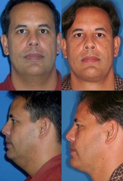 Neck Liposuction Gallery - Patient 2158386 - Image 1