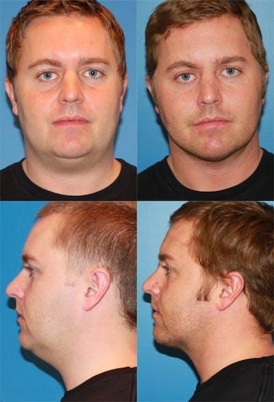 Neck Liposuction Gallery - Patient 2158389 - Image 1