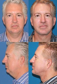Neck Liposuction Gallery - Patient 2158390 - Image 1
