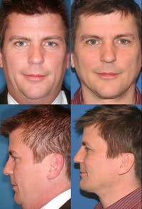 Neck Liposuction Gallery - Patient 2158391 - Image 1