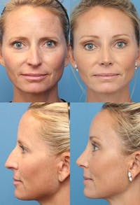 Rhinoplasty Gallery - Patient 2158393 - Image 1