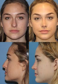 Rhinoplasty Gallery - Patient 2158395 - Image 1