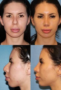 Rhinoplasty Gallery - Patient 2158397 - Image 1