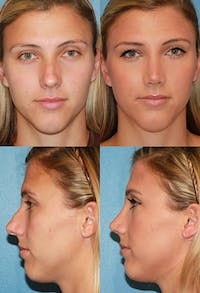 Rhinoplasty Gallery - Patient 2388184 - Image 1