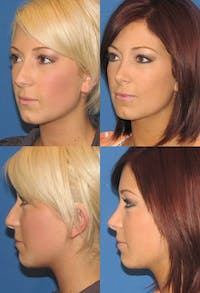 Rhinoplasty Gallery - Patient 2388186 - Image 1